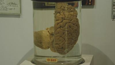 charles babbage brain