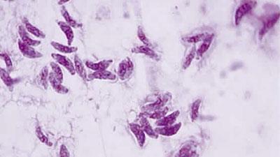 Toksoplasmosis