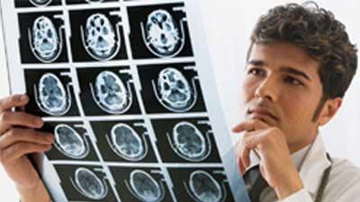 kondisi neurologis