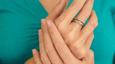 Mitos Arthritis terkait membunyikan tangan atau persendian lain