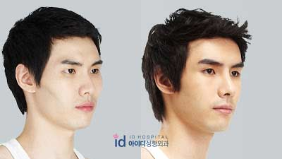 Man Plastic Surgery