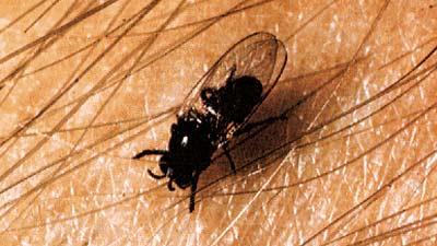 Onchocerca Volvulus adalah parasit karena lalat hitam