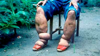 kaki gajah karena cacing filaria