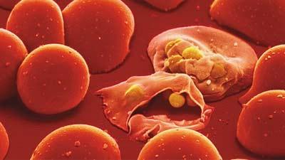 Malaria karena nyamuk anopheles
