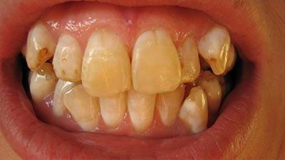 noda gigi