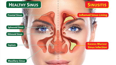 Perbandingan sinus yang sehat dengan penyakit sinusitis