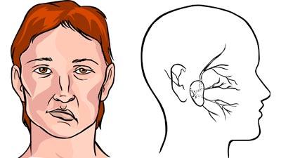 Gejala stroke dan contoh orang yang terkena stroke